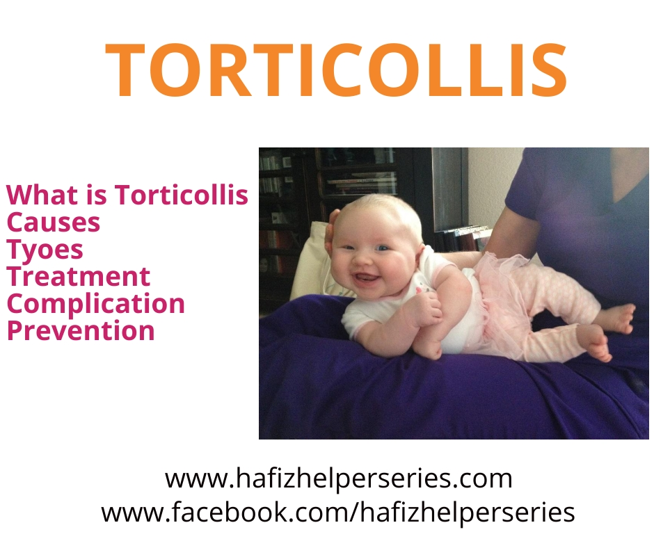 What is Torticollis? (Its Causes, Types, Treatment, Complications & Prevention)